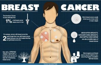 Male Breast Cancer